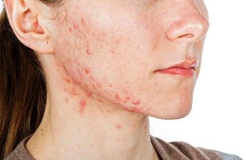Consejo para combatir el acné con el tomate - 100 Salud