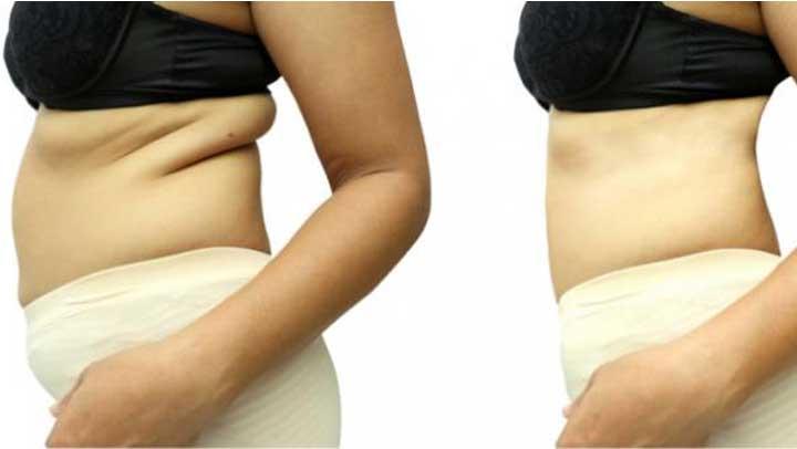 Hiérvelo y bebe esta infusión para perder 1 kilo y 4 cm diario de grasa de la cintura y barriga