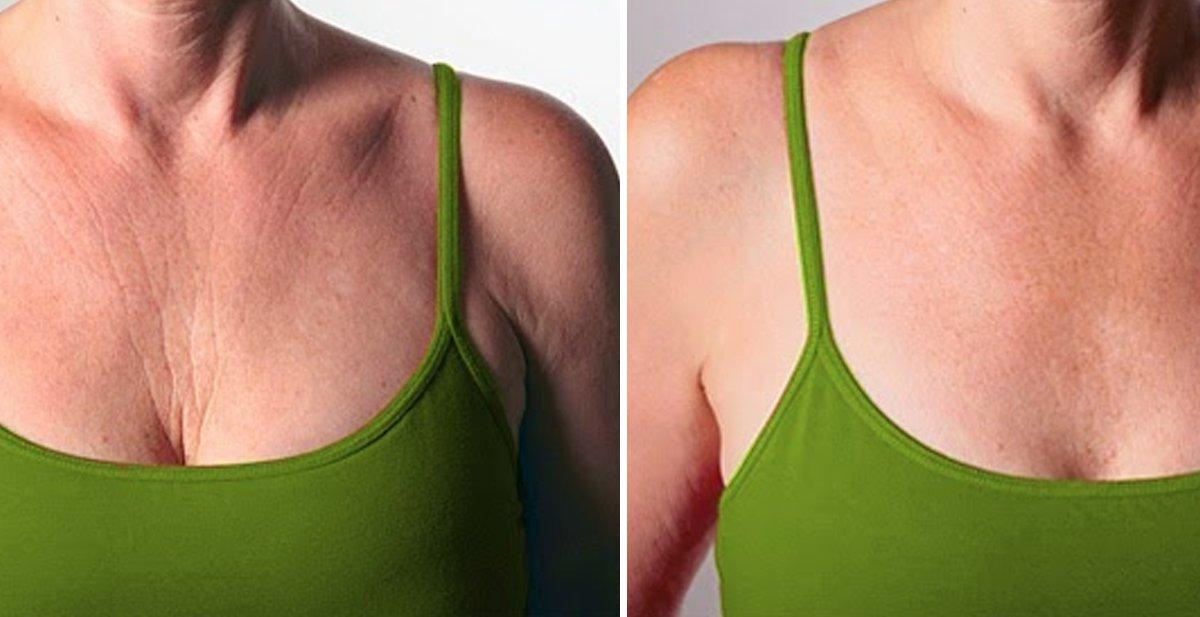 9 remedios respaldados por la ciencia para minimizar las arrugas de tu pecho